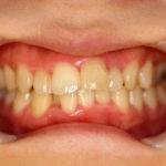 歯列矯正 case1